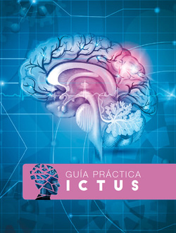 2017 th guia prevencion ictus